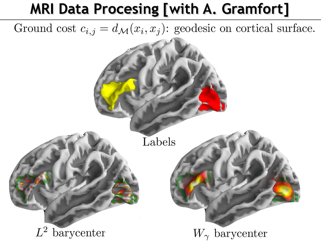MRI Data Procesing [with A. Gramfort] ariationa...