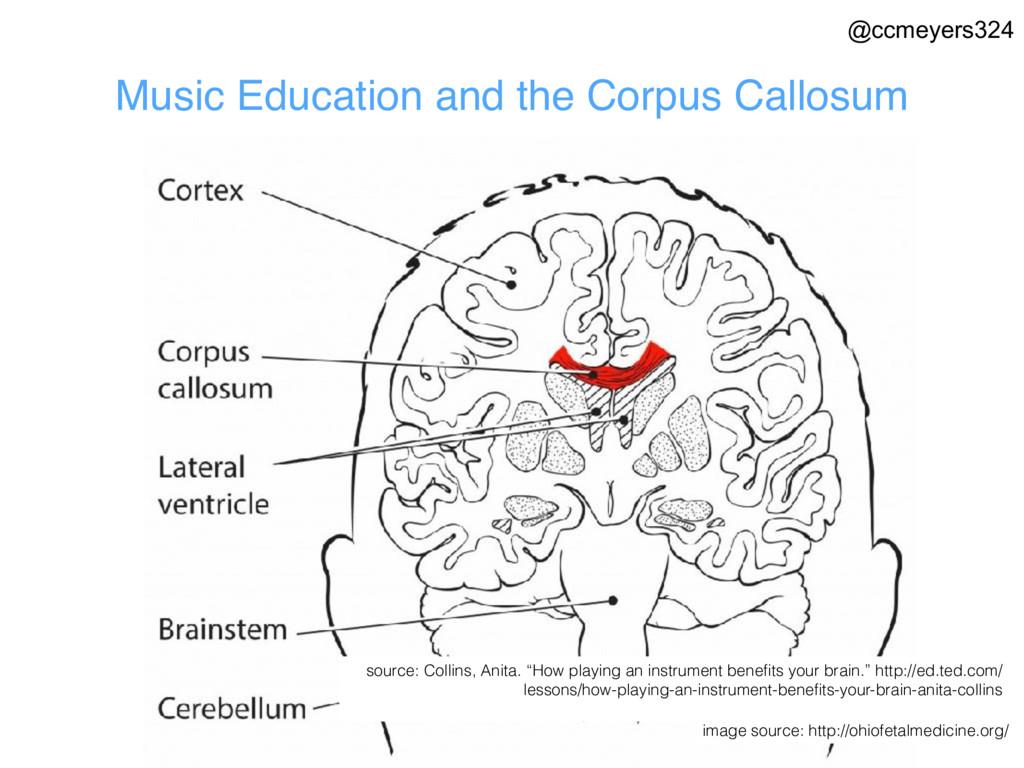 Music Education and the Corpus Callosum image s...