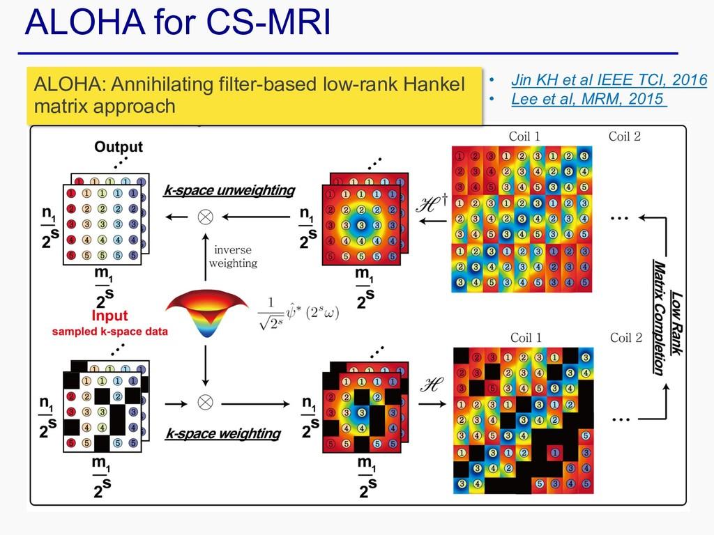 ALOHA for CS-MRI ALOHA: Annihilating filter-bas...