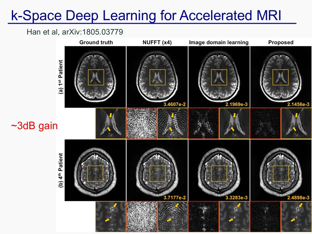 k-Space Deep Learning for Accelerated MRI Han e...