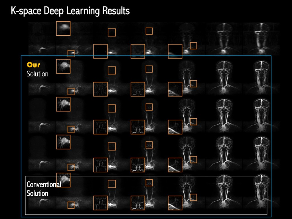 K-space Deep Learning Results Conventional Solu...