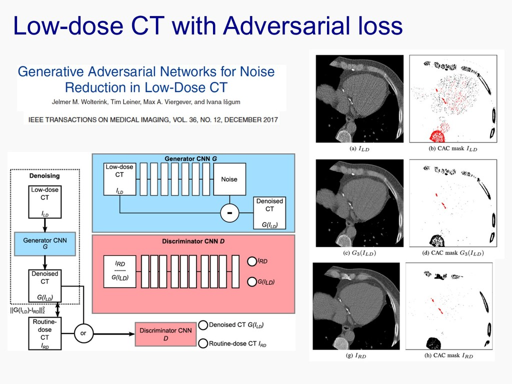 Low-dose CT with Adversarial loss