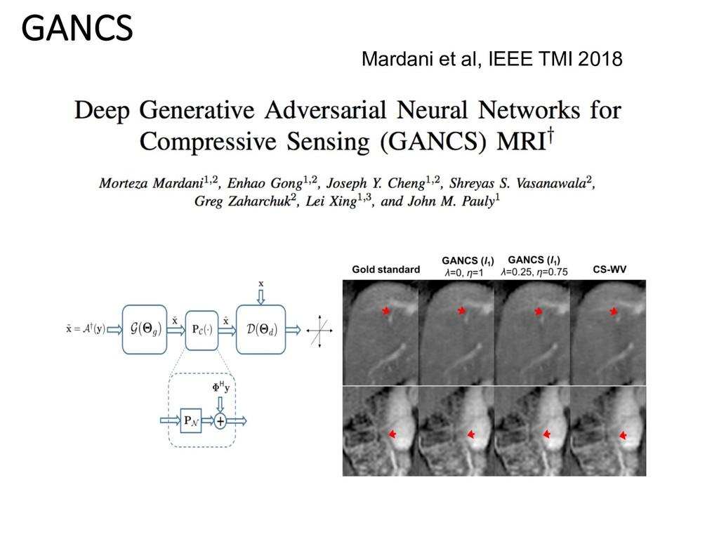 GANCS Mardani et al, IEEE TMI 2018