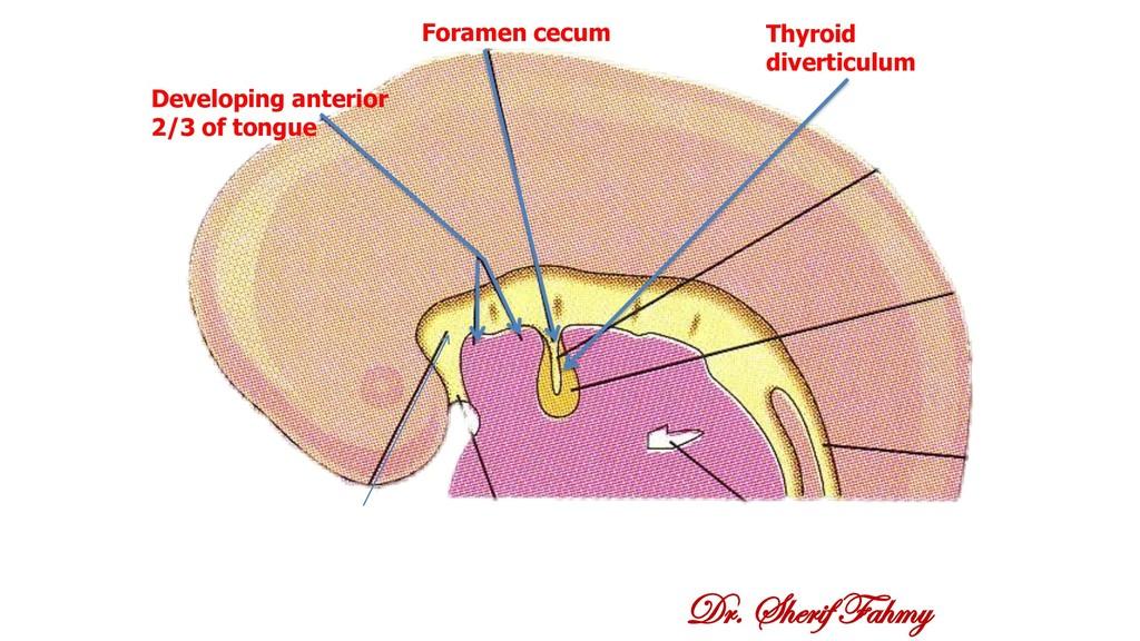 Dr. Sherif Fahmy Foramen cecum Thyroid divertic...
