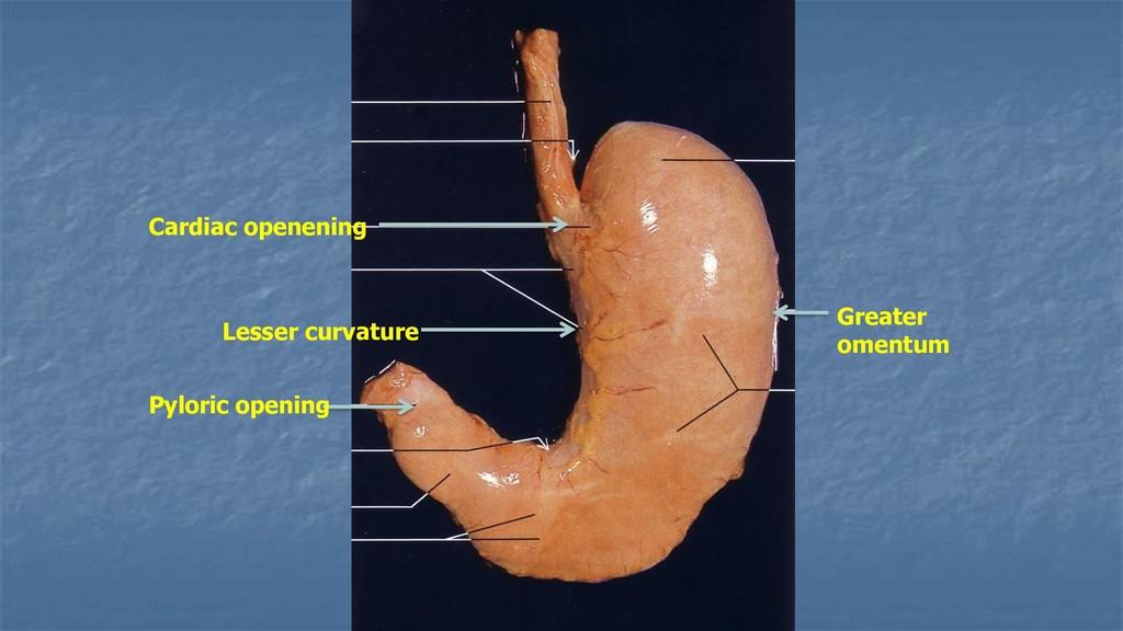Cardiac openening Pyloric opening Lesser curvat...