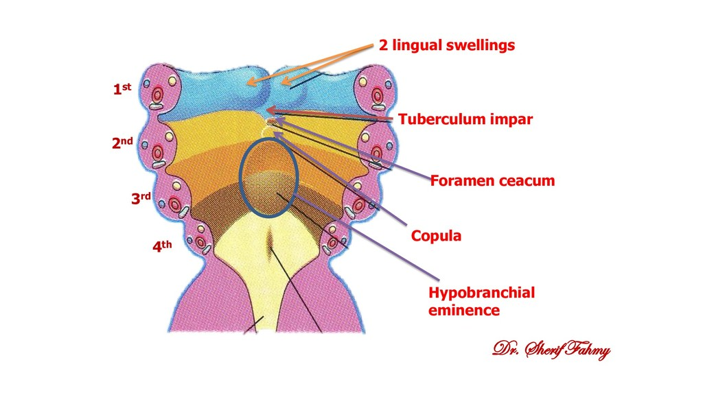 Dr. Sherif Fahmy 2 lingual swellings Tuberculum...