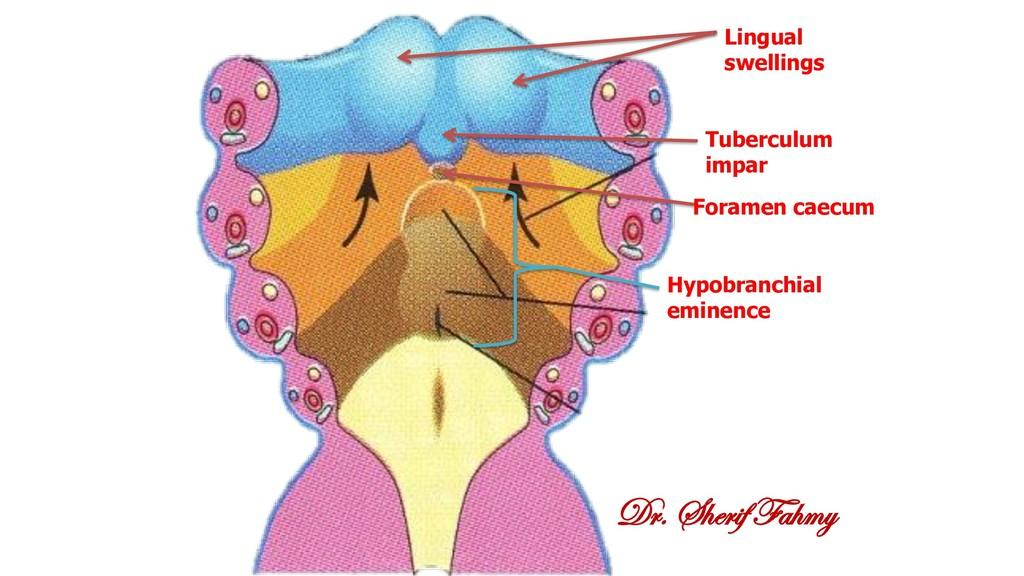 Dr. Sherif Fahmy Lingual swellings Tuberculum i...