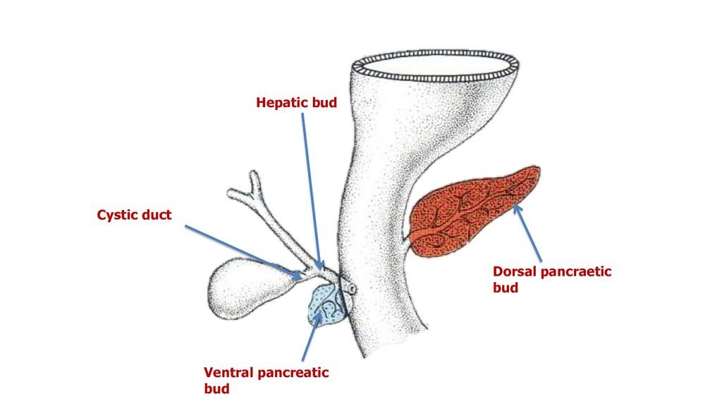 Dorsal pancraetic bud Ventral pancreatic bud He...