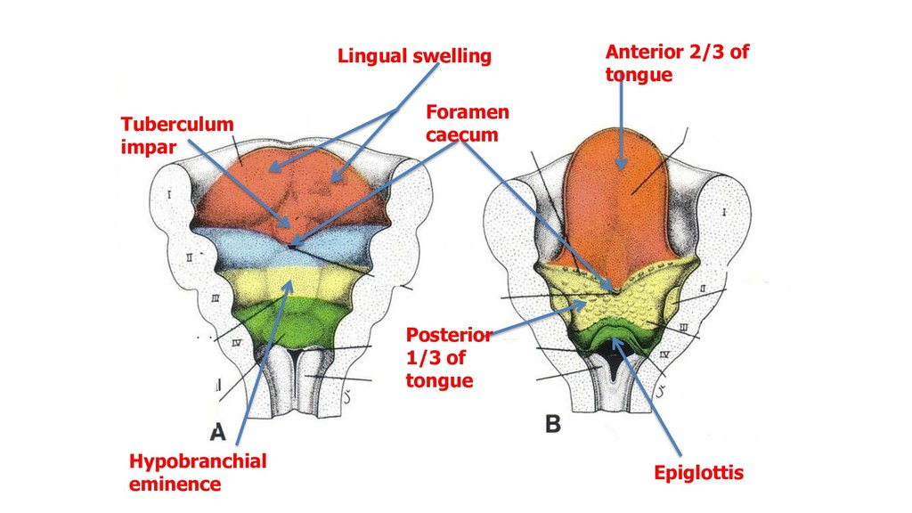 Lingual swelling Anterior 2/3 of tongue Hypobra...