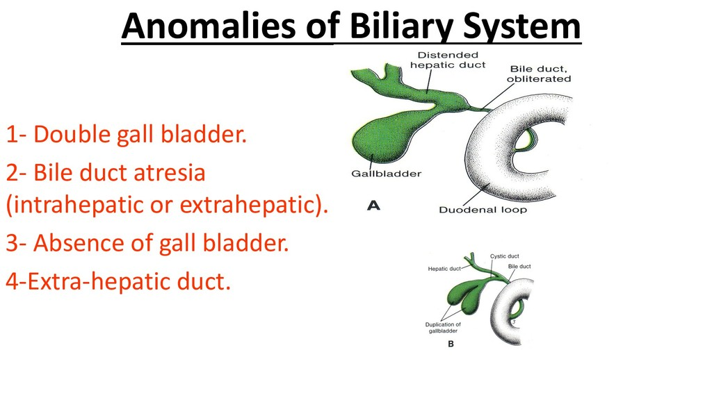 Anomalies of Biliary System 1- Double gall blad...