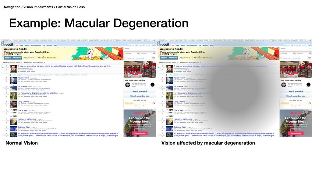 Example: Macular Degeneration Navigation / Visi...