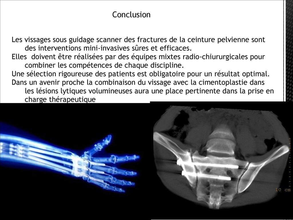 Conclusion Les vissages sous guidage scanner...