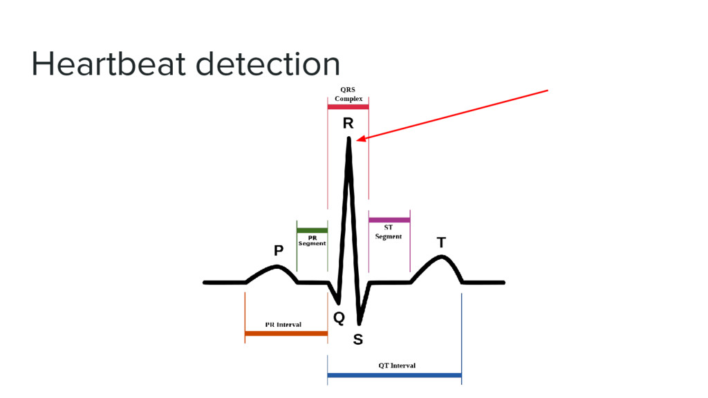 Heartbeat detection