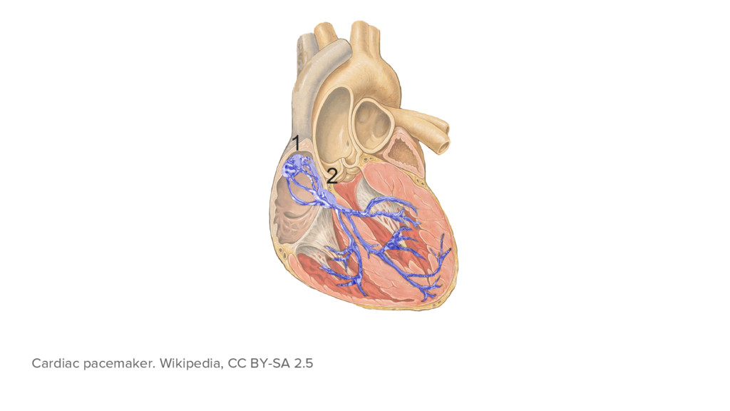 Cardiac pacemaker. Wikipedia, CC BY-SA 2.5