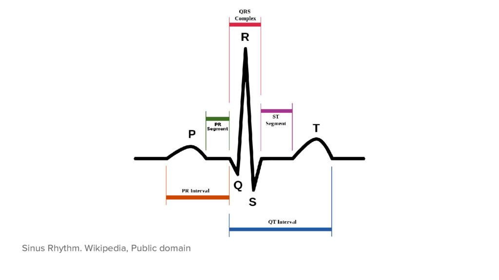 Sinus Rhythm. Wikipedia, Public domain