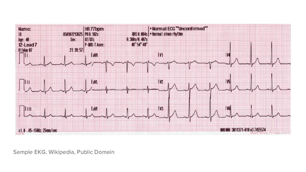 Sample EKG. Wikipedia, Public Domain