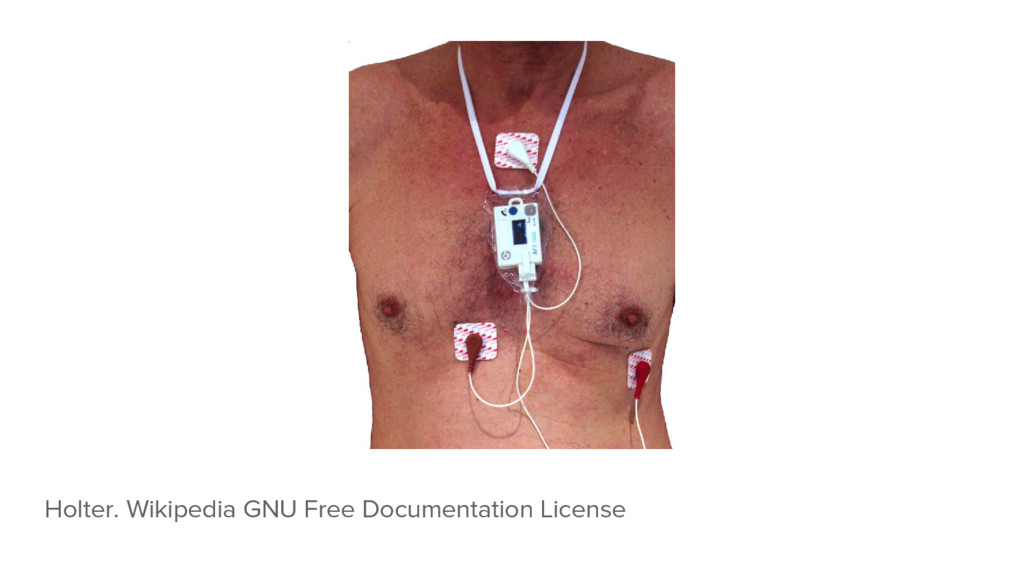 Holter. Wikipedia GNU Free Documentation License