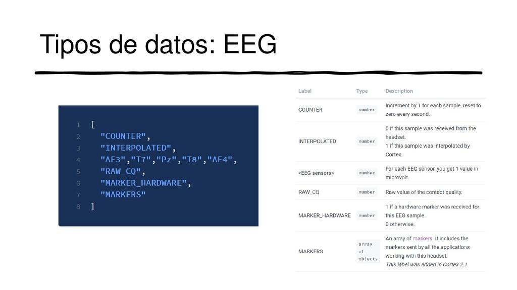 Tipos de datos: EEG