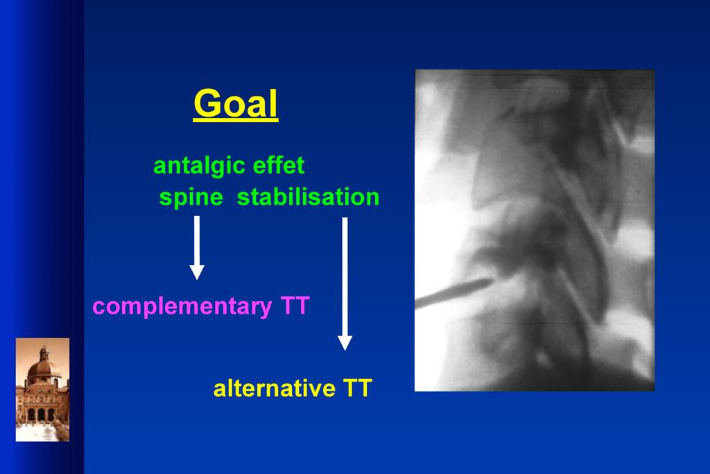 Goal antalgic effet spine stabilisation complem...