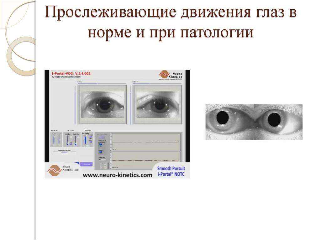 Прослеживающие движения глаз в норме и при пато...