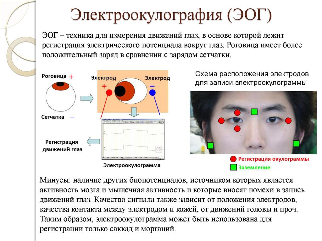 Электроокулография (ЭОГ) Схема расположения эле...