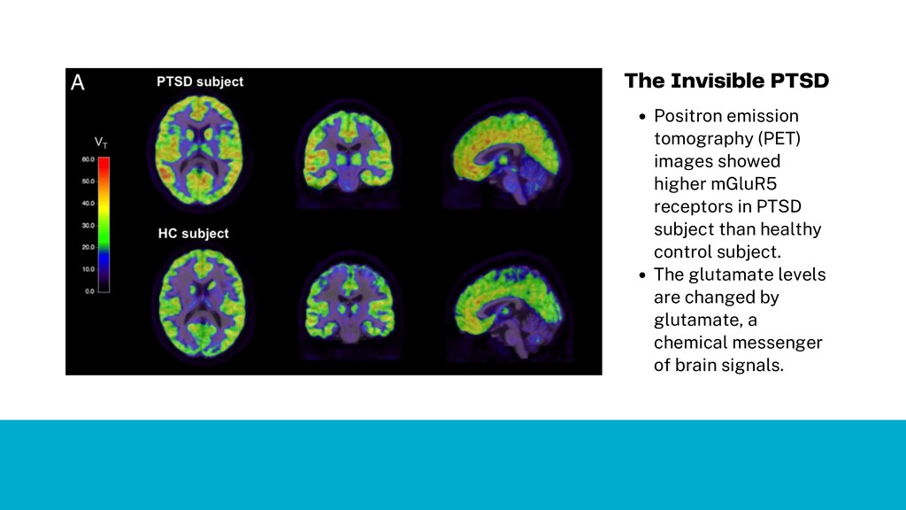Positron emission tomography (PET) images showe...