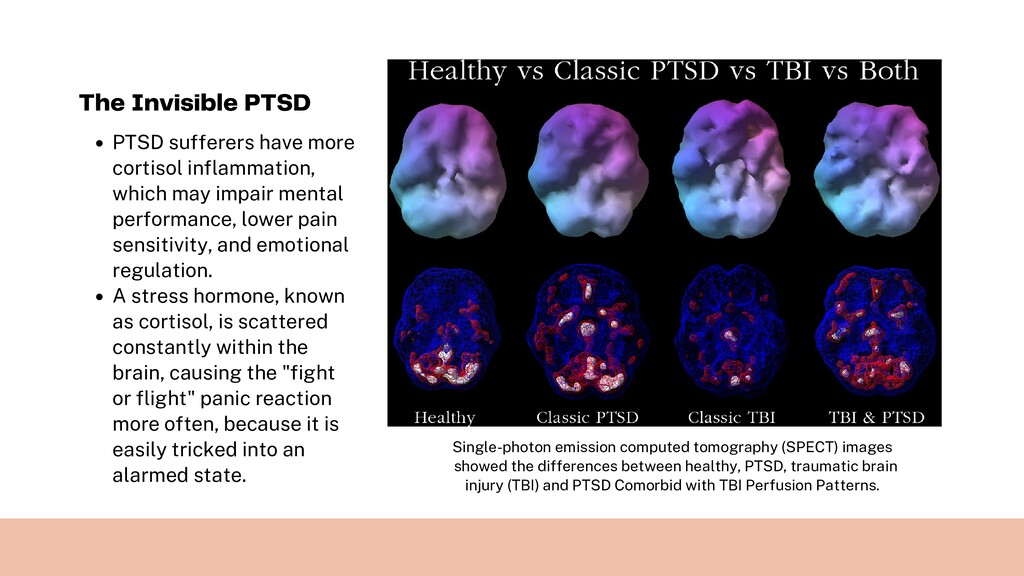 PTSD sufferers have more cortisol inflammation,...