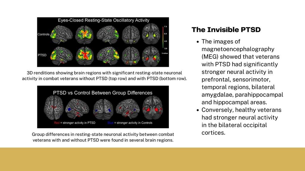 The images of magnetoencephalography (MEG) show...