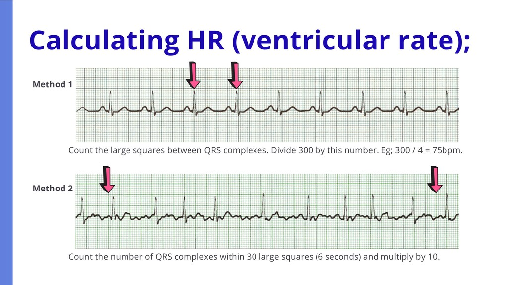 Calculating HR (ventricular rate); Method 1 Met...