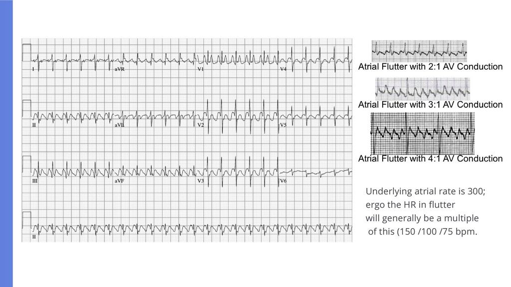 Underlying atrial rate is 300; ergo the HR in f...