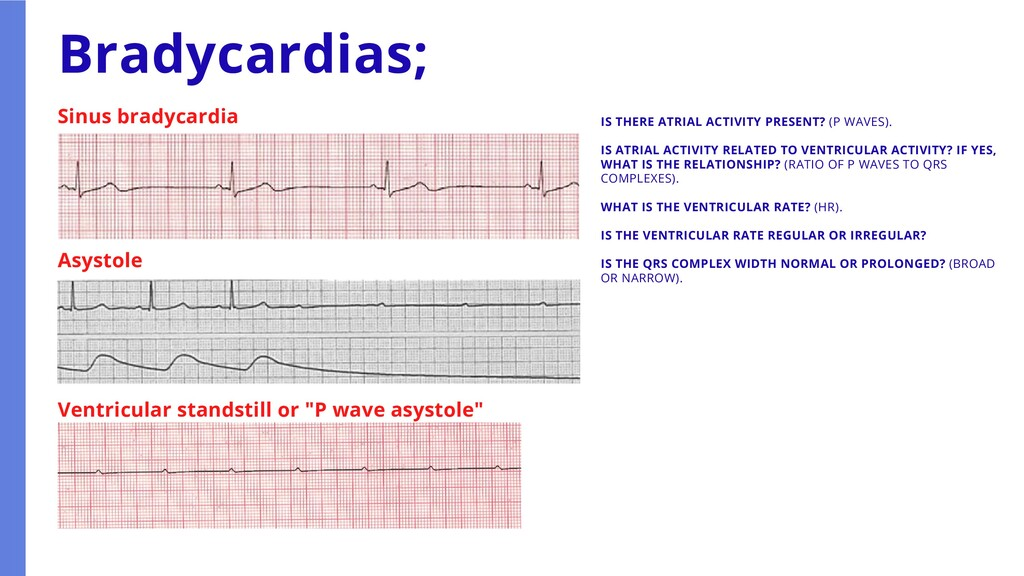 IS THERE ATRIAL ACTIVITY PRESENT? (P WAVES). IS...