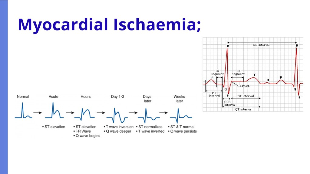Myocardial Ischaemia;