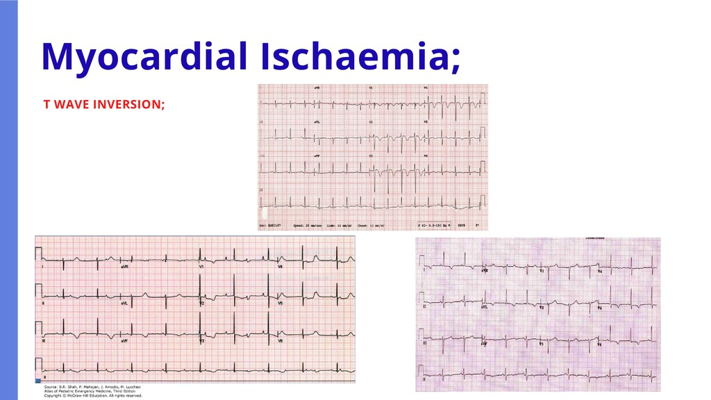 T WAVE INVERSION; Myocardial Ischaemia;