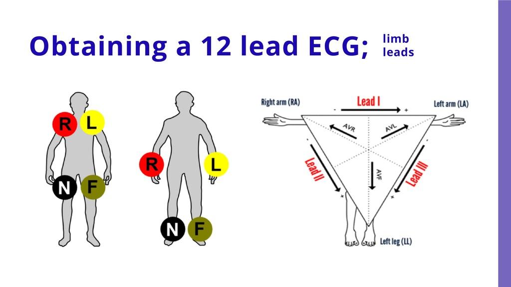 Obtaining a 12 lead ECG; limb leads