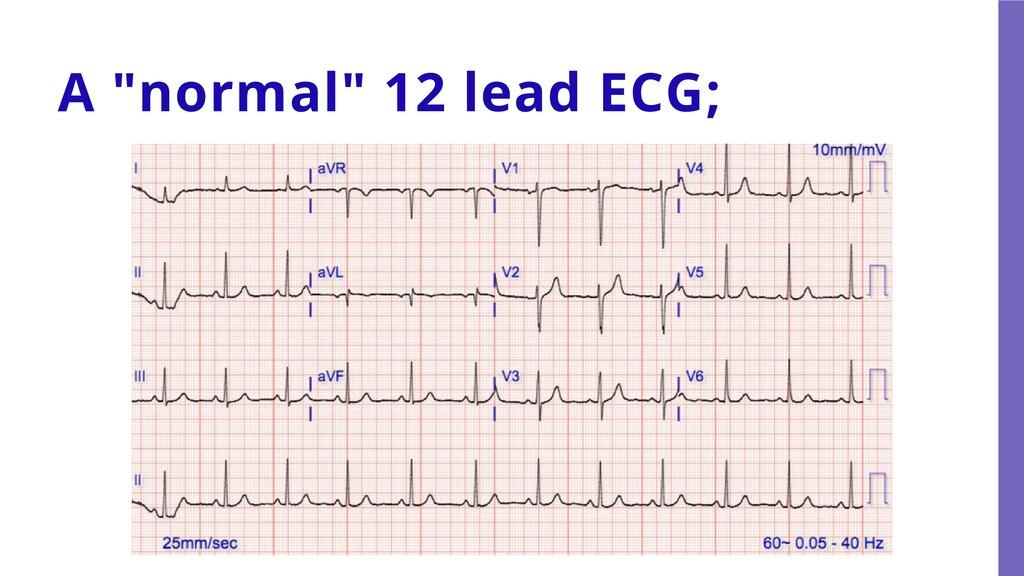 """A """"normal"""" 12 lead ECG;"""