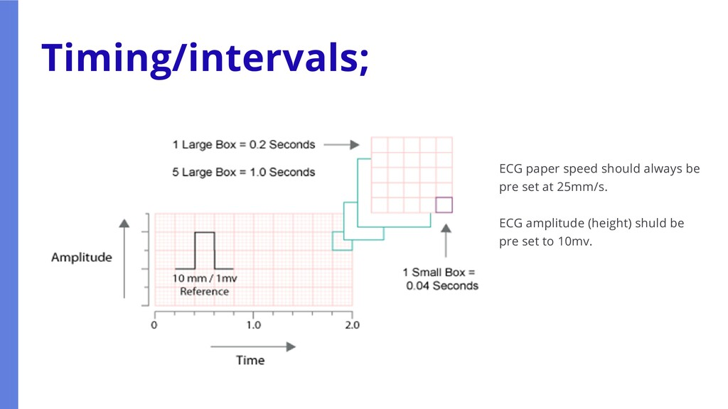 Timing/intervals; ECG paper speed should always...