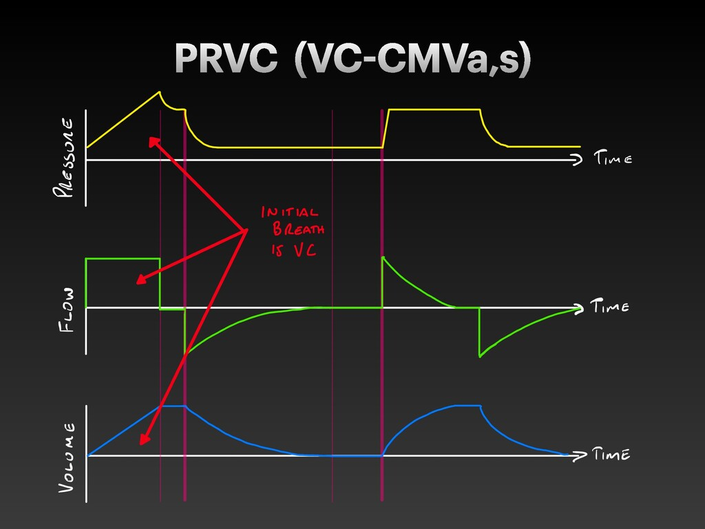 PRVC (VC CMVa,s)