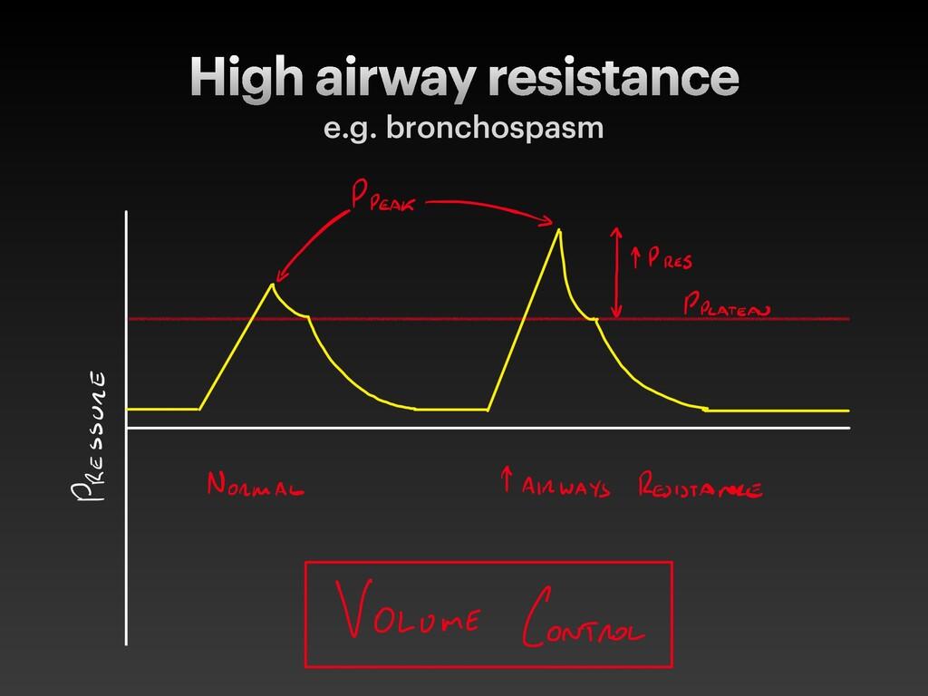High airway resistance e.g. bronchospasm