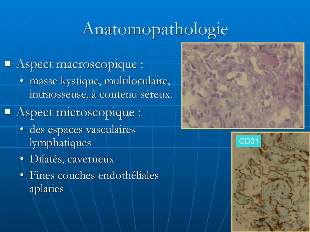 Anatomopathologie ! Aspect macroscopique : • ma...