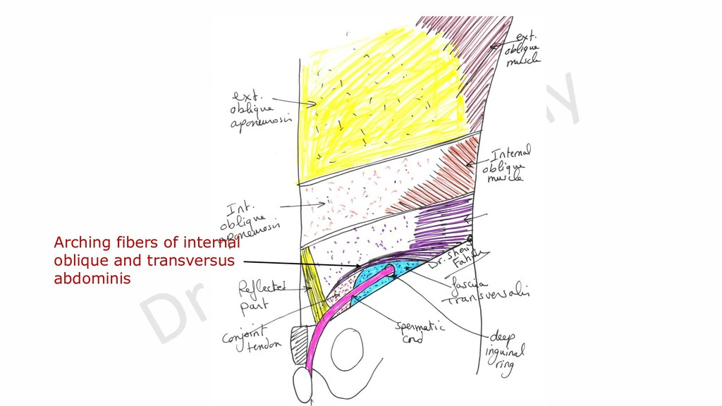 Arching fibers of internal oblique and transver...