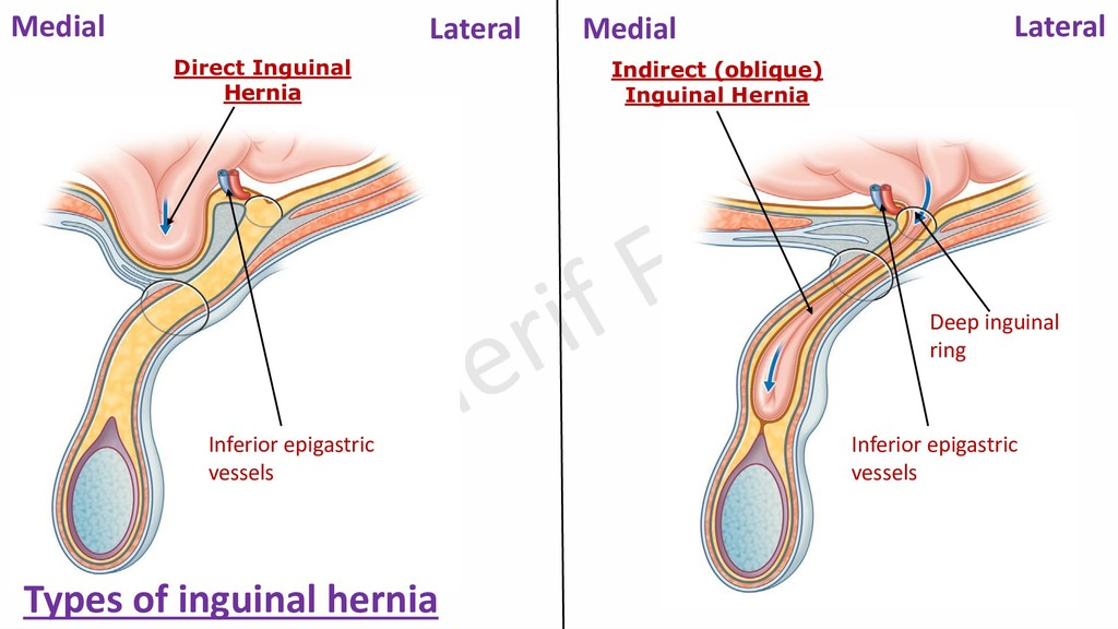 Direct Inguinal Hernia Indirect (oblique) Ingui...