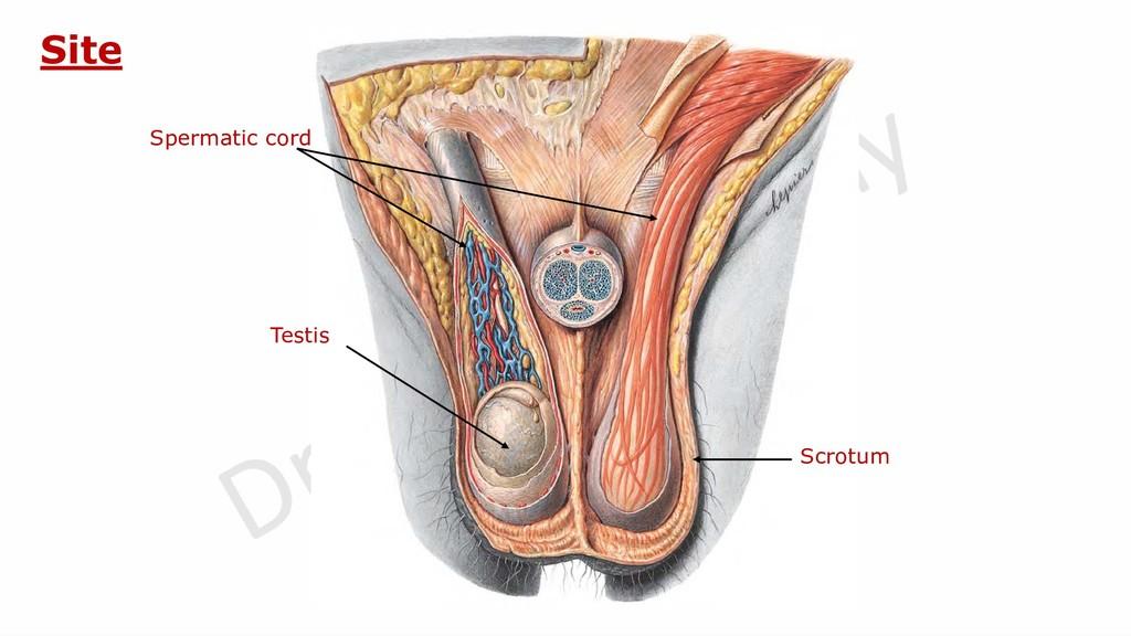 Scrotum Site Spermatic cord Testis