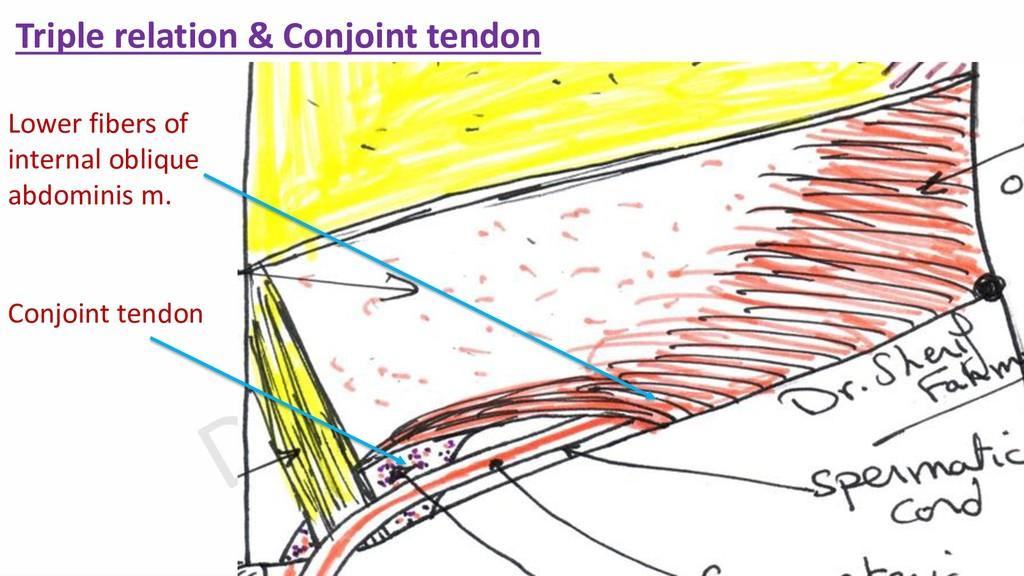 Triple relation & Conjoint tendon Lower fibers ...