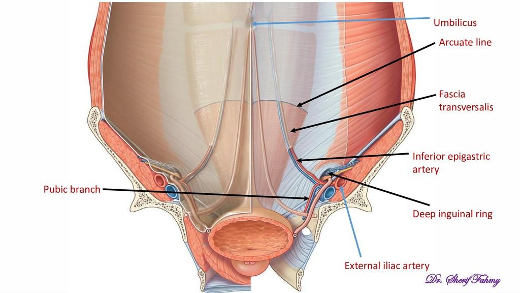 External iliac artery Inferior epigastric arter...