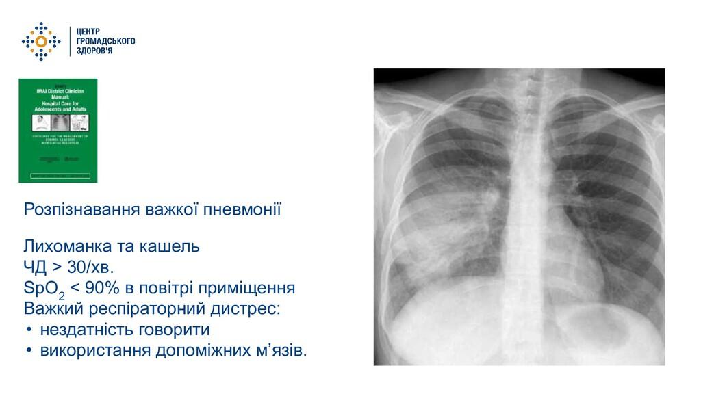 Розпізнавання важкої пневмонії Лихоманка та каш...