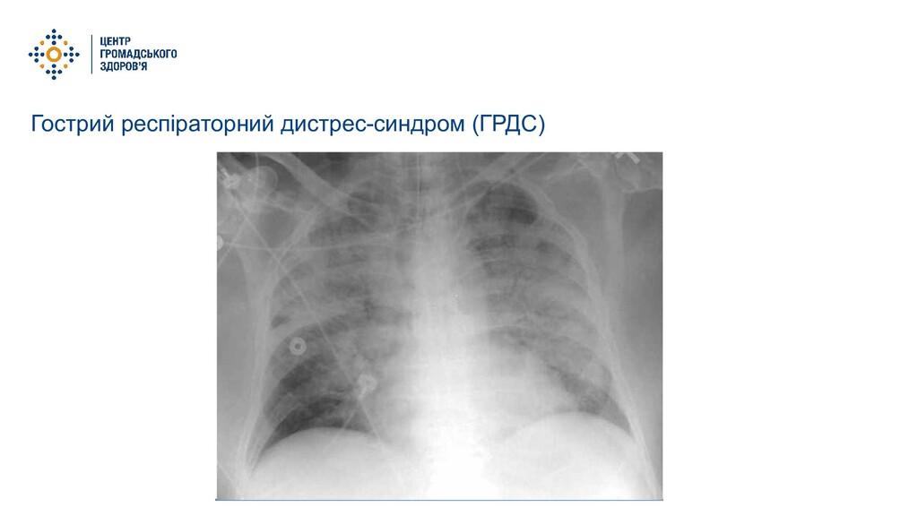 Гострий респіраторний дистрес-синдром (ГРДС)