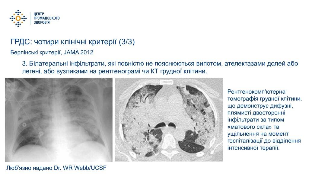 ГРДС: чотири клінічні критерії (3/3) Берлінські...