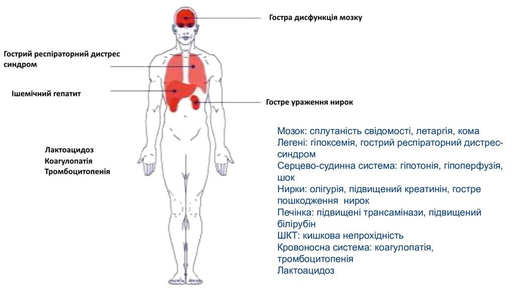 Мозок: сплутаність свідомості, летаргія, кома Л...