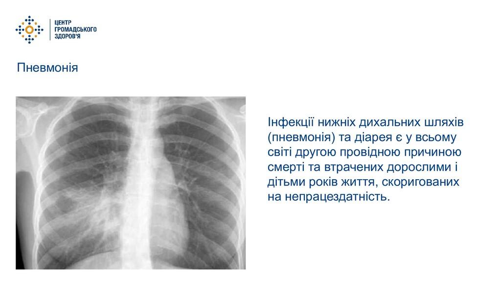 Пневмонія Інфекції нижніх дихальних шляхів (пне...