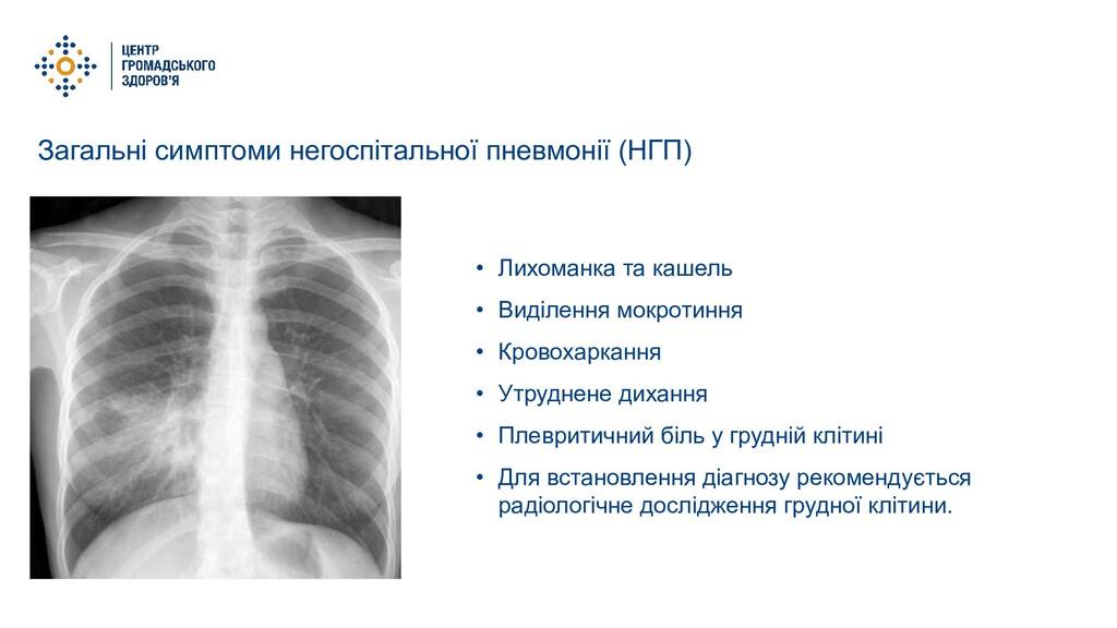 Загальні симптоми негоспітальної пневмонії (НГП...